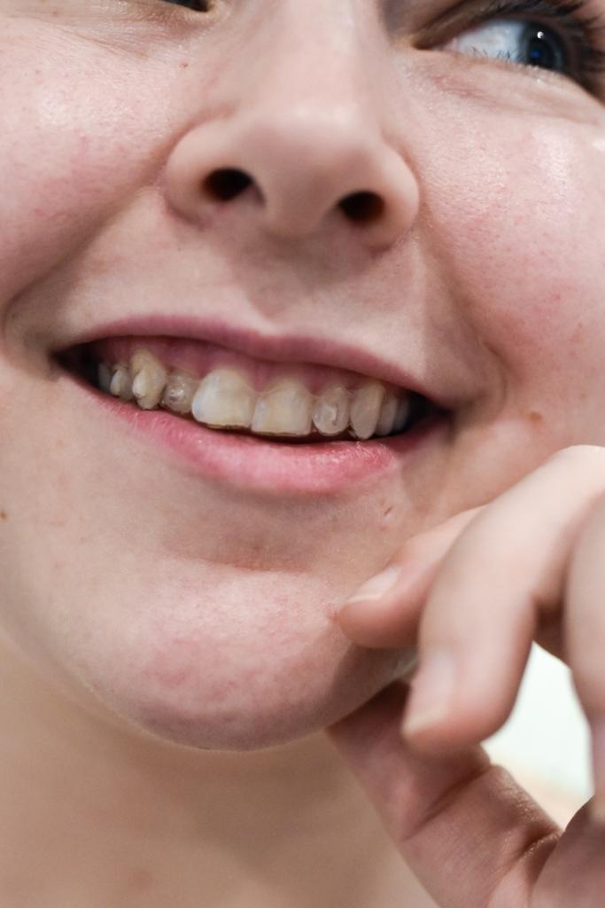 Läpinäkyvät hammasraudat Invisalign